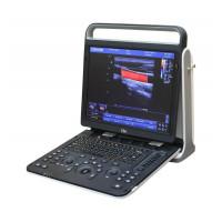 Ультразвуковой аппарат Chison Sonotouch 60