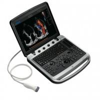 Ультразвуковой аппарат Chison Sonotouch 80 (SonoBook 8)